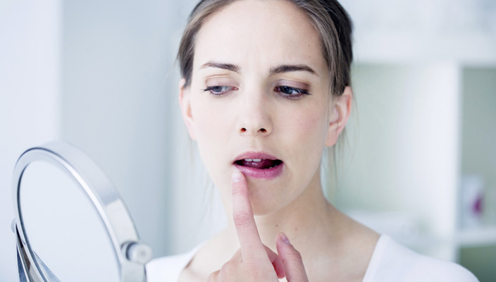 Kako se znebiti herpesa?