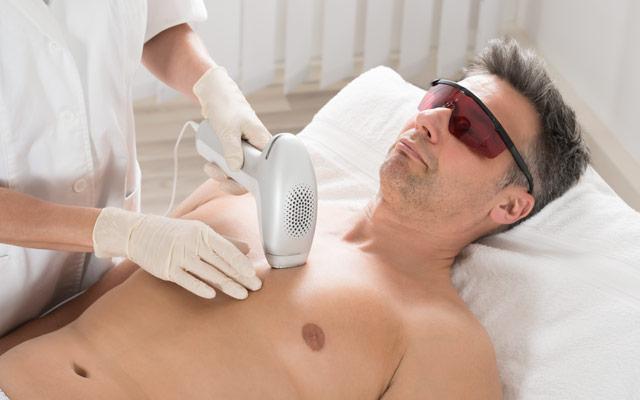 Odstranjevanje dlak za moške